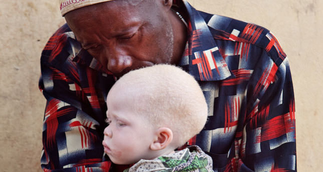 Turkey to help Tanzania's albinos after attacks
