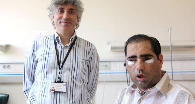 Turkey's sixth face transplant patient dies
