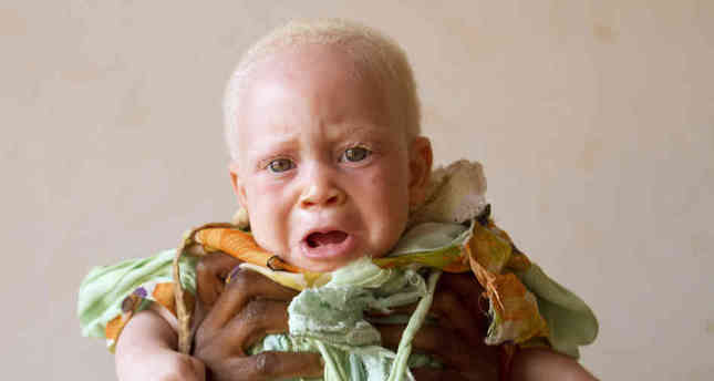 Turkey to help children with albinism in Tanzania