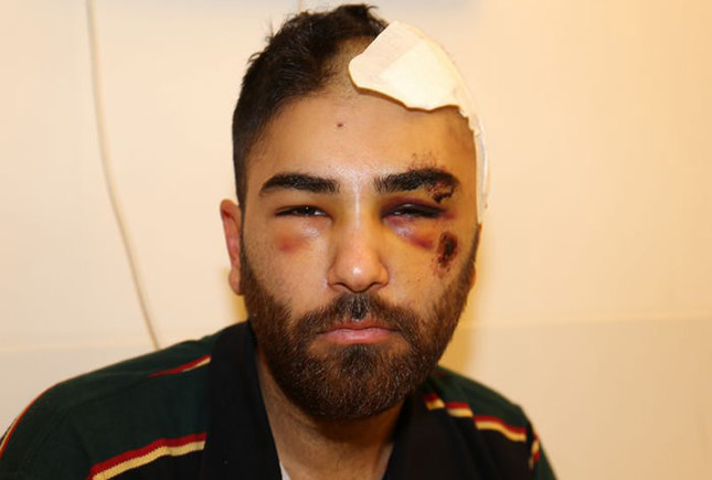 Turkish father and son victims of racist attacks in Germany