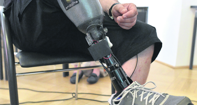 World's first 'feeling' prosthetic leg offers new hope to amputees