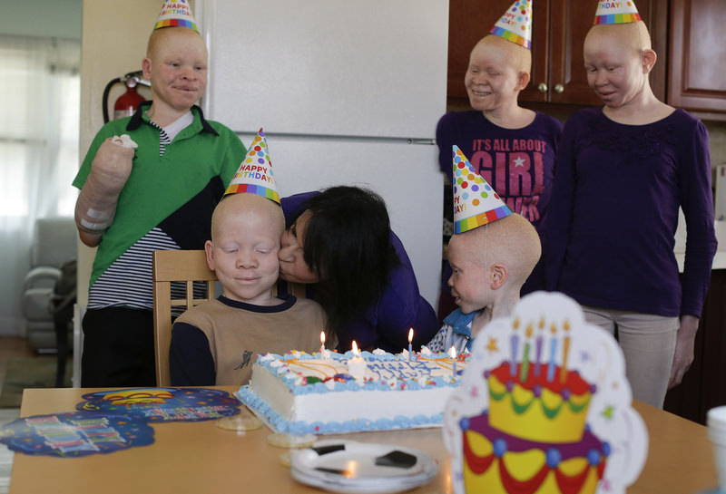 Mwigulu Magesa celebrated  his 12th birthday with his other albino friends in New York.
