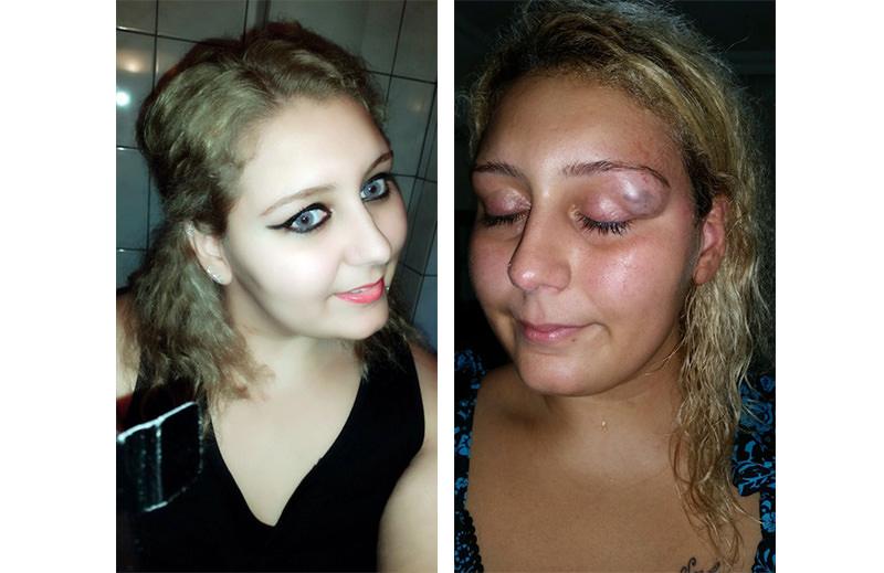 Ku00fcbra Yu0131lmaz, before and after domestic abuse (u0130HA photo)