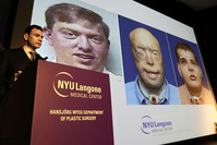 Dr. Eduardo Rodriguez (L) who performed the facial transplant on recipient Patrick Hardison, speaks at a press conference (EPA Photo)