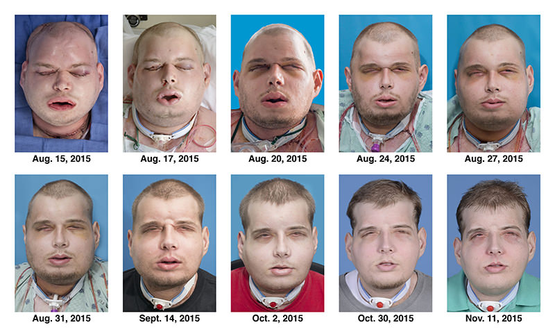 This combination of Aug. 15, 2015 to Nov. 11, 2015 photos provided by the New York University Langone Medical Center shows the recuperation of Patrick Hardison after his facial transplant surgery in New York (AP Photo)