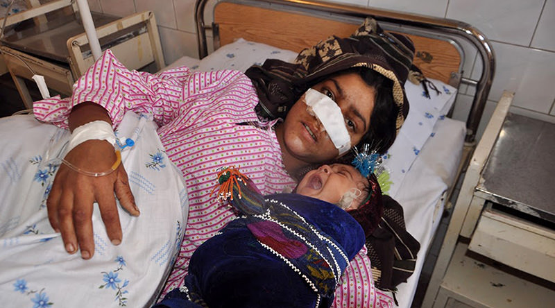 Afghan woman Reza Gul, 20, and whose nose was sliced off by her husband in an attack, lies on a bed with her baby as she receives treatment at a hospital in the northern province of Faryab on January 19, 2016 (AFP Photo)