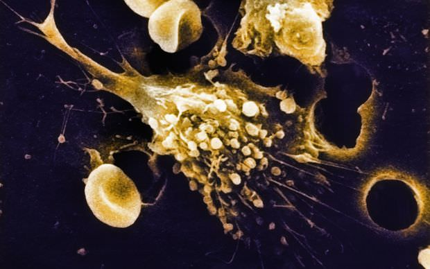 A colorized scanning electron micrograph of cancer cells growing in tissue culture are seen in this undated handout photo. (REUTERS Photo)
