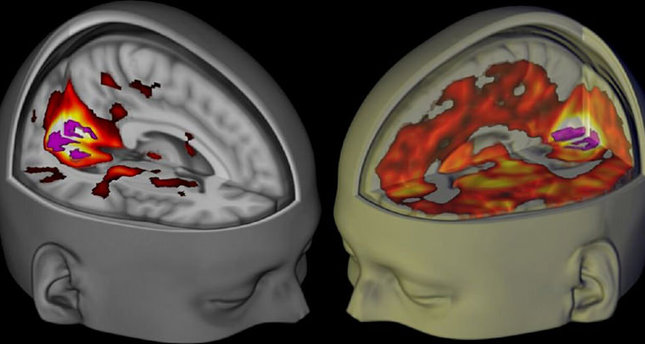 The brains of subjects lying awake with their eyes closed, under a placebo (L) and the drug LSD (R). (REUTERS Photo)