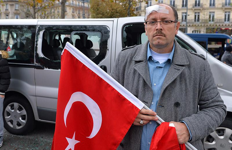 Ibrahim Kılıç, chair of the Union of European Turkish Democrats (UETD), was injured on his head. (AA Photo)
