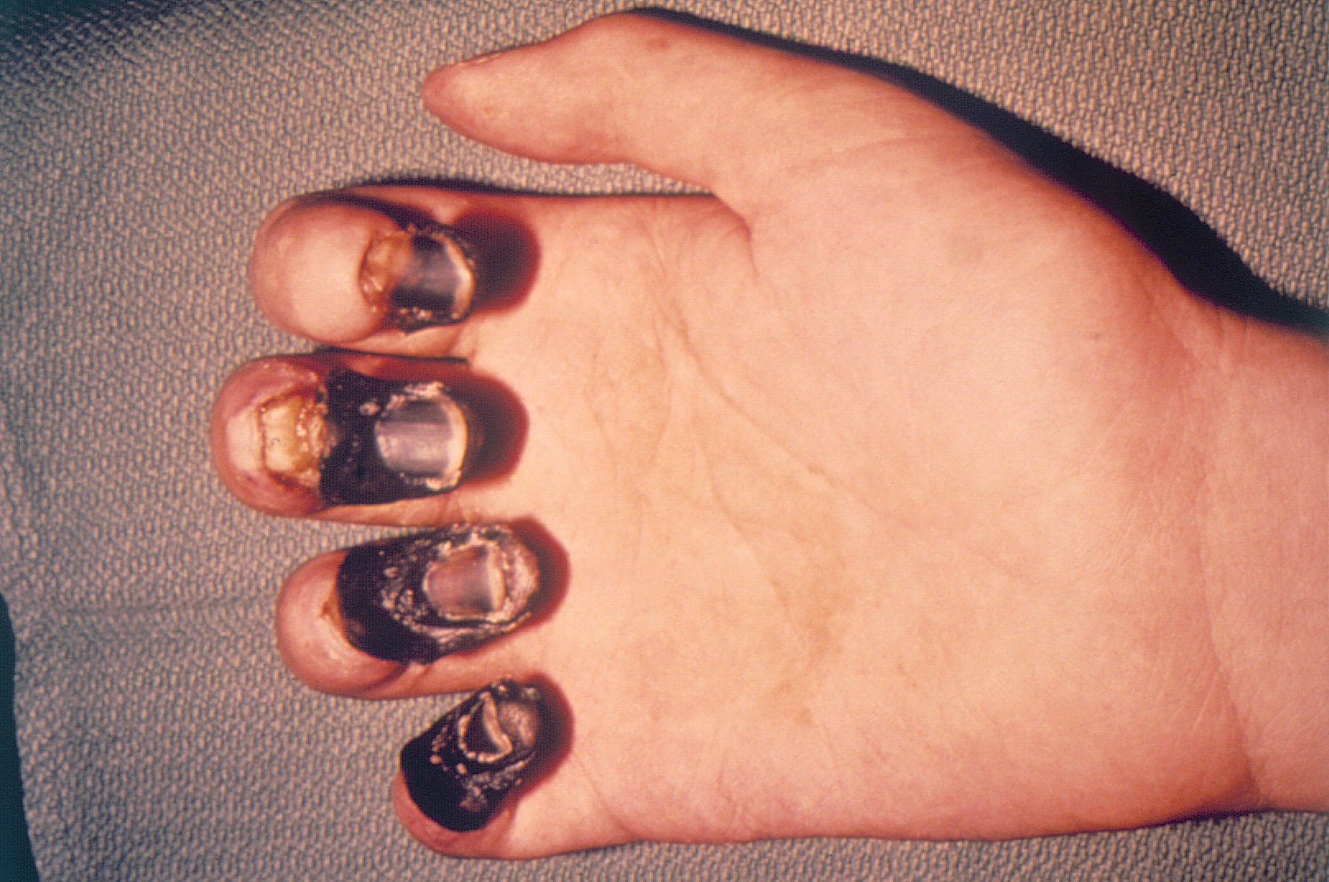 Acral gangrene taking over the fingers of a bubonic plague victim. (Photo credit: Centers for Disease Control and Prevention)