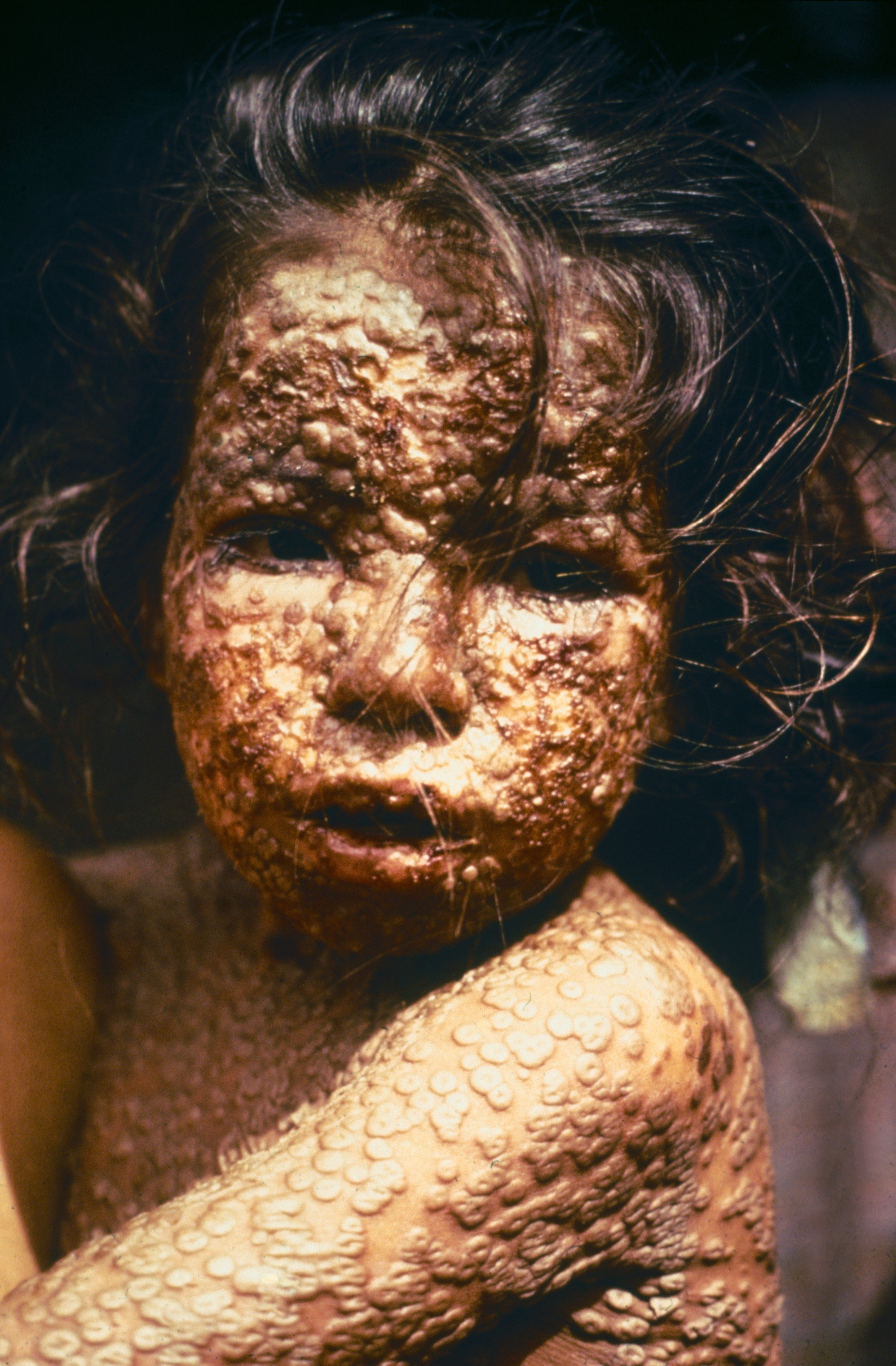 This young girl in Bangladesh was infected with smallpox in 1973. (Photo credit: CDC / James Hicks)