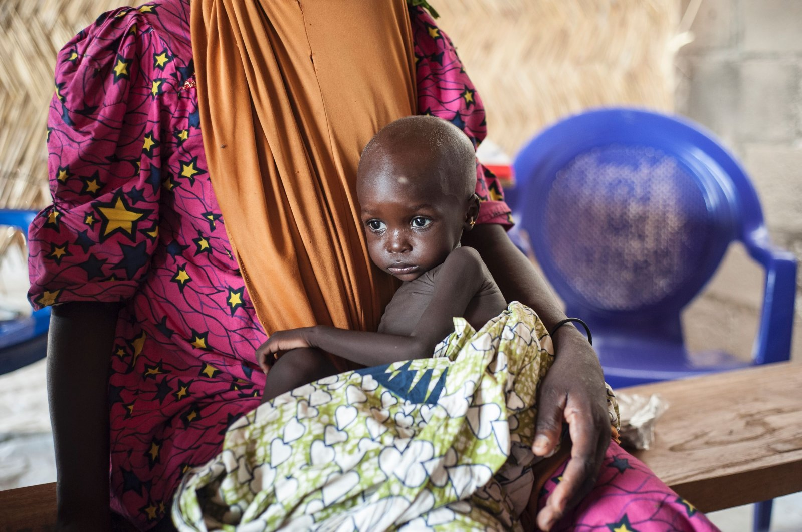 A young girl suffering from severe acute malnutrition sitting on her mother's lap, at one of the UNICEF nutrition clinics in the outskirts of Maiduguri capital of Borno State, northeastern Nigeria, June 30, 2016. (AFP Photo)