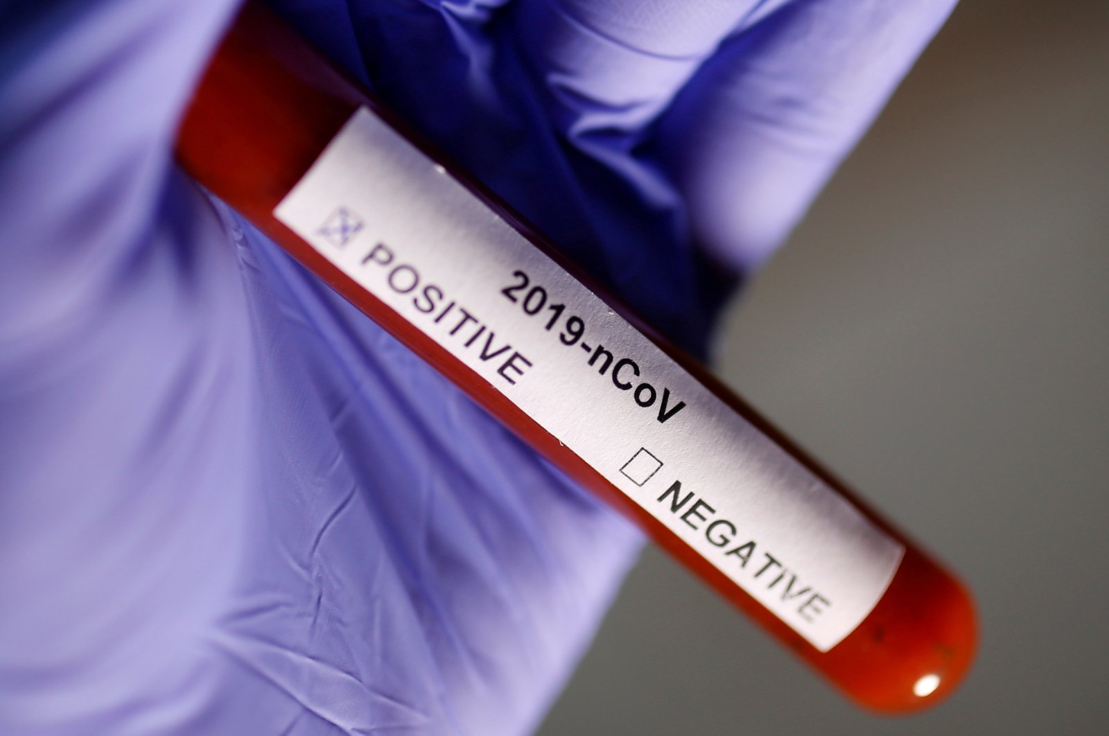 Test tube labelled with novel coronavirus name is seen in this illustration photo, Jan. 29, 2020. (Reuters Photo)