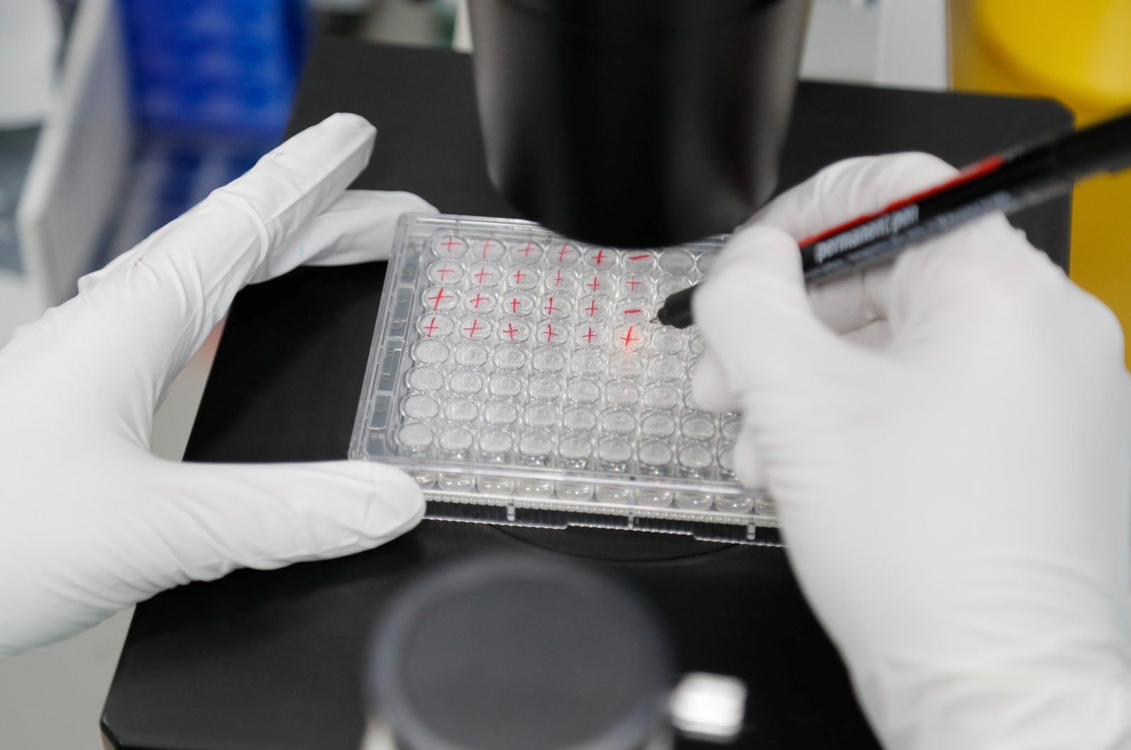 A scientist examines COVID-19 infected cells during research for a vaccine at a laboratory of BIOCAD biotechnology company in Saint Petersburg, Russia, May 20, 2020. (Reuters Photo)