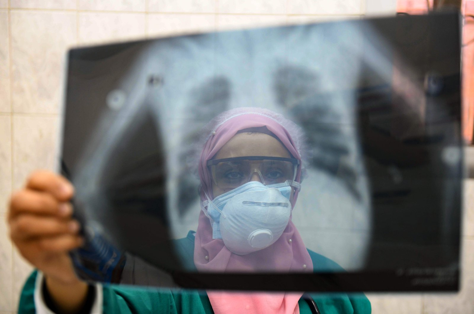 An Egyptian doctor wearing two protective masks checks a patient's lung X-ray at the infectious diseases unit of Imbaba hospital during the coronavirus pandemic, Cairo, April 19, 2020. (AFP Photo)