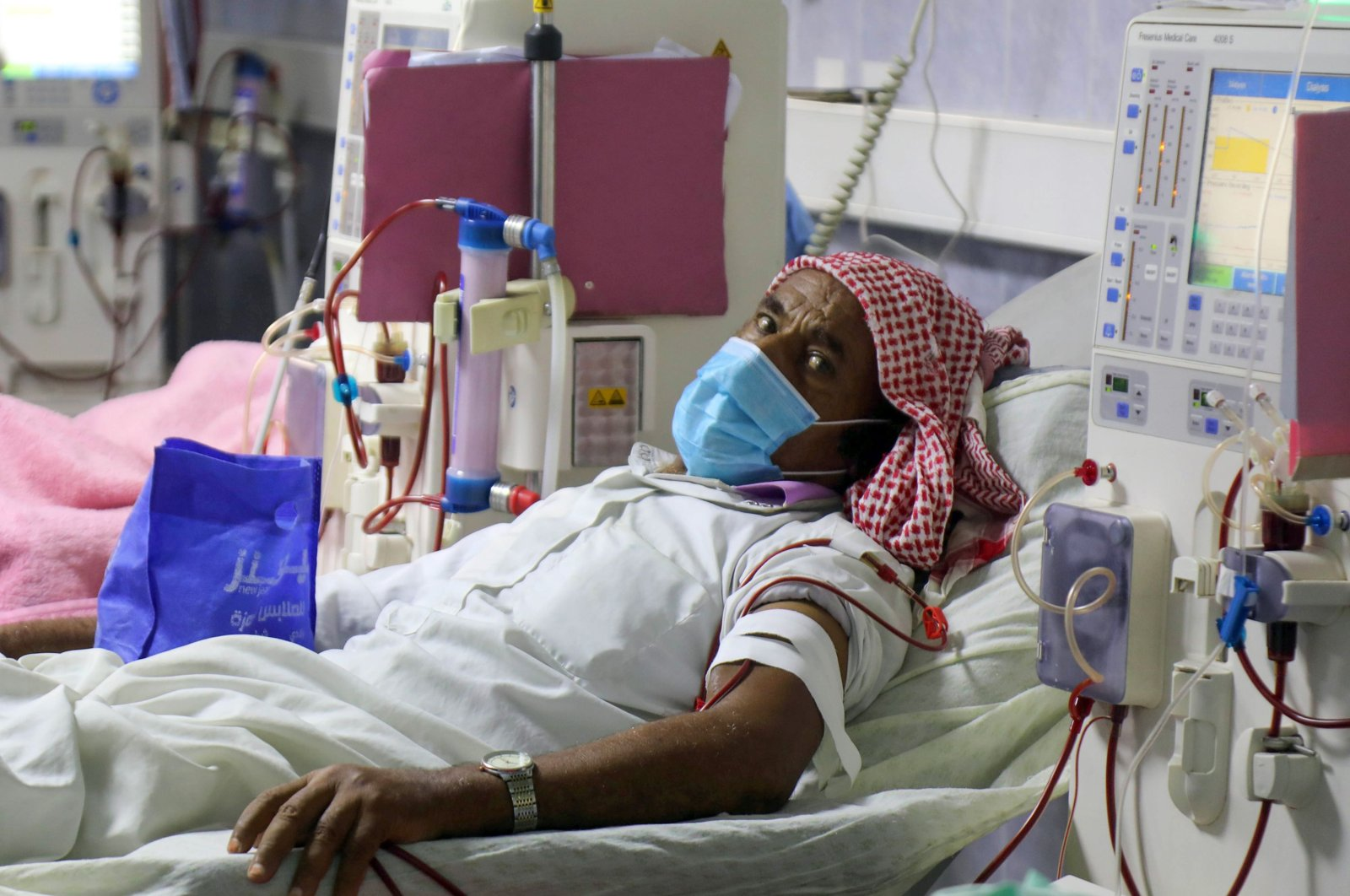 A mask-clad patient, suffering from kidney failure, receives dialysis treatment at al-Thawra hospital in the country's third-largest city of Taiz, Yemen, June 8, 2020. (AFP Photo)