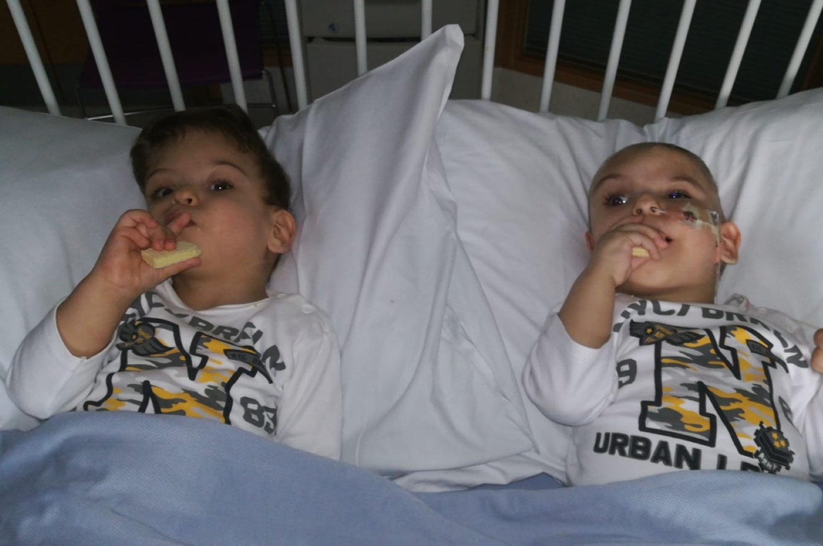 The twins lie on a hospital bed after their surgery in this undated photo. (İHA Photo)