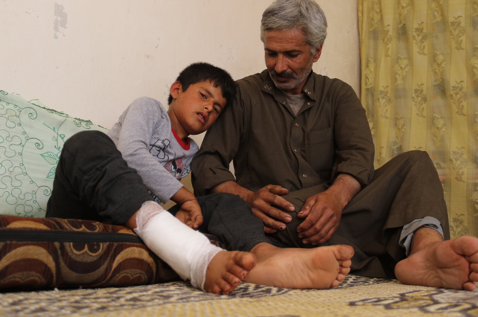 Muhammed Kalso with his son Semih, who was injured while walking in the middle of the village in a mine explosion last week, July 8, 2020. (AA)