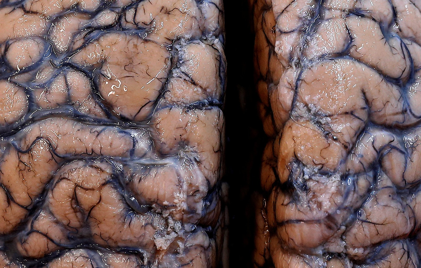 A human brain, part of a collection of more than 3,000 brains that could provide insight into psychiatric diseases, is seen at the psychiatric hospital in Duffel, Belgium, July 19, 2017. (REUTERS Photo)