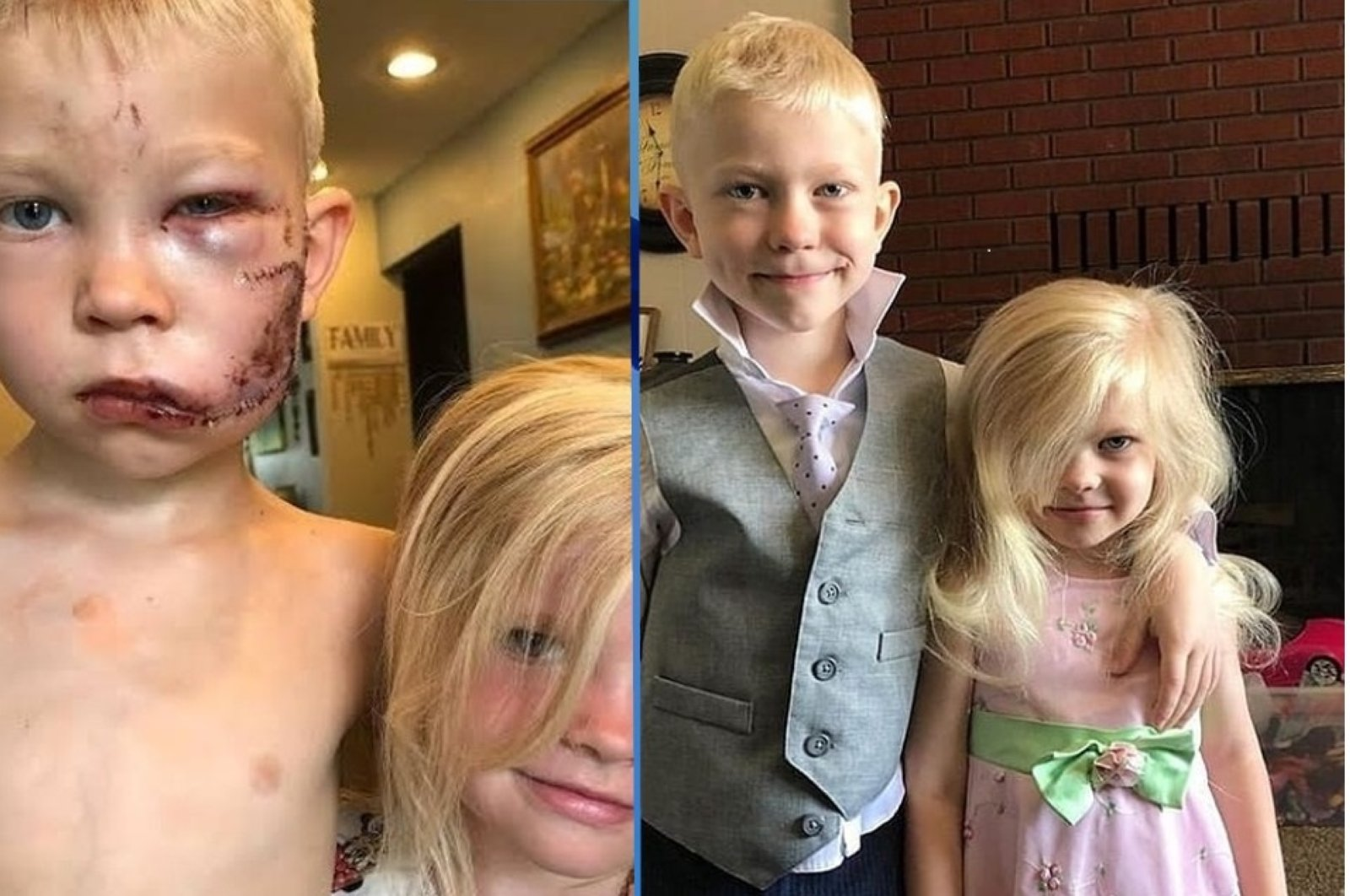 The photos show Bridger Walker and his sister before and after the attack, July 11, 2020. (Retrieved from Instagram)