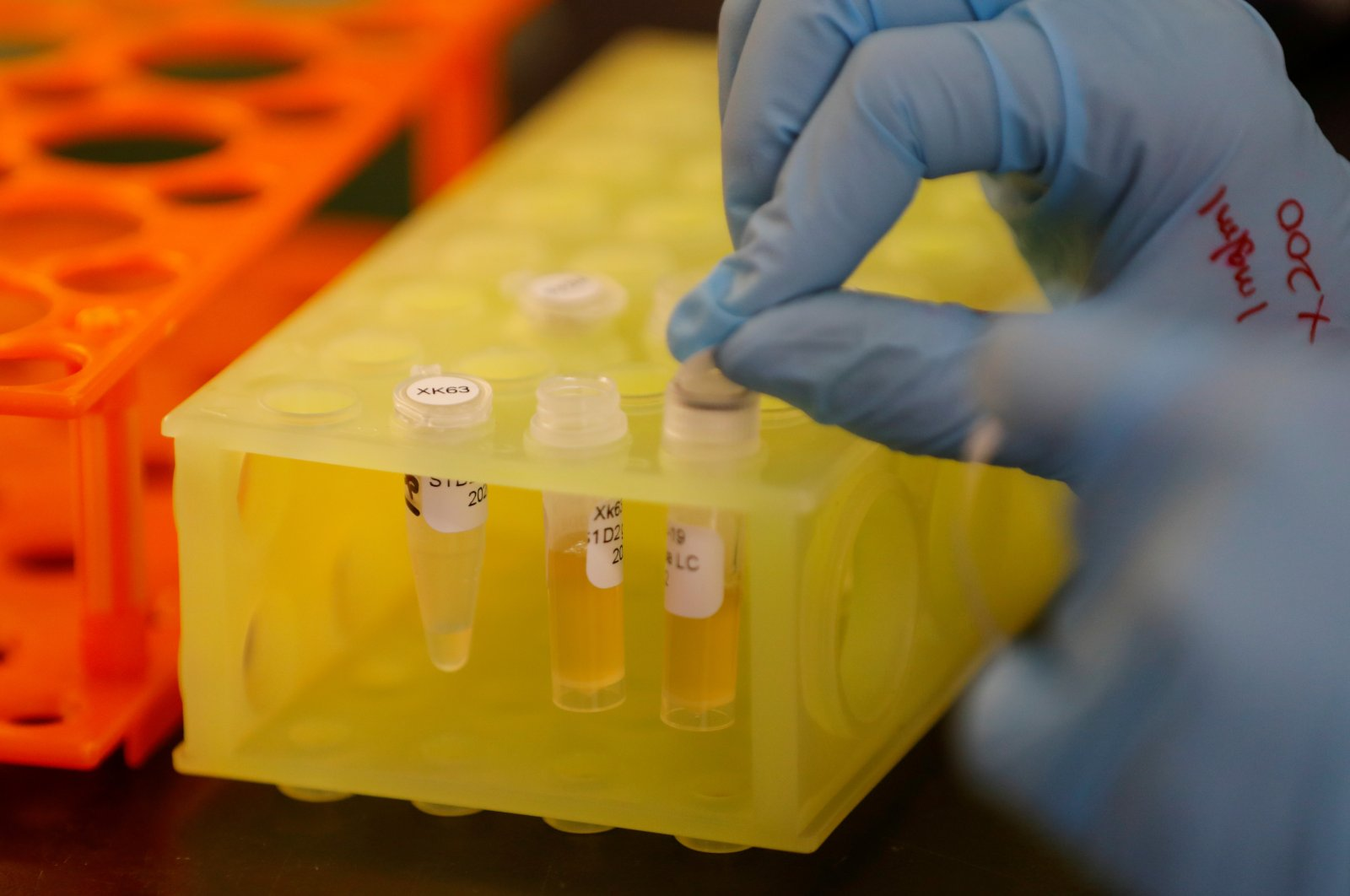 A lab technician works at Sorrento Therapeutics where efforts are underway to develop an antibody, STI-1499, to help in the prevention of COVID-19, in San Diego, California, U.S., May 22, 2020. (Reuters Photo)