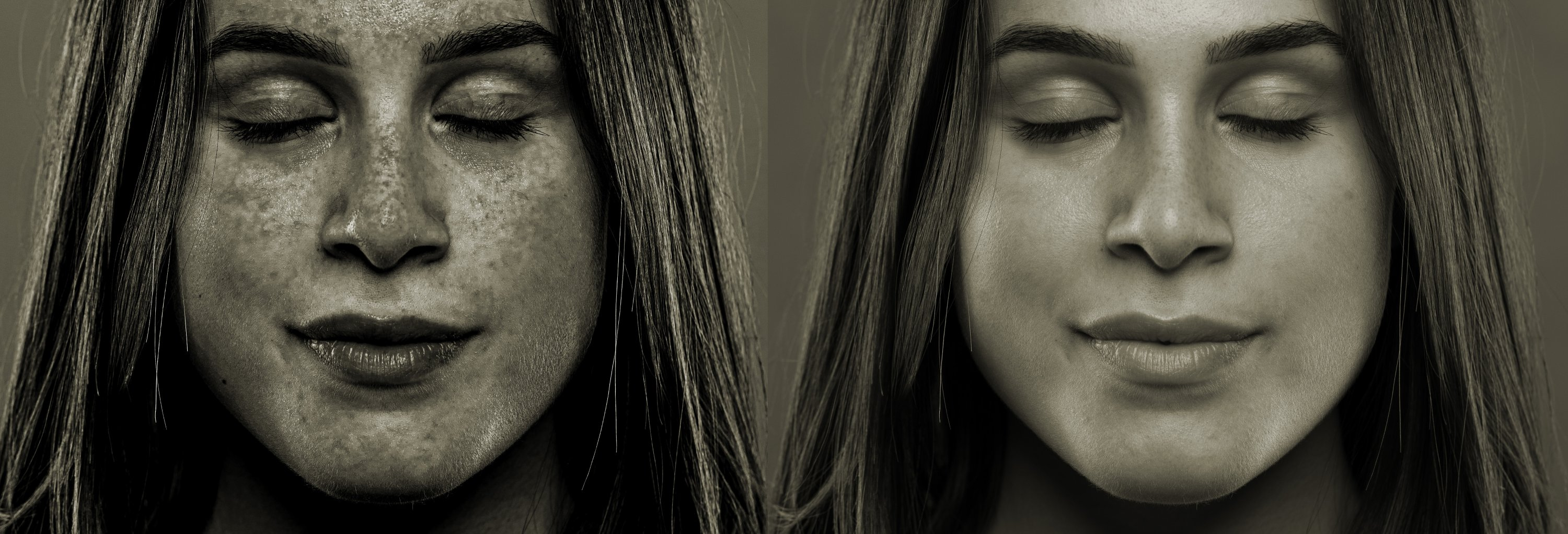 A side by side comparison shows the before and after results of a young girl who spent too long in the sun outdoors without UV skin protection. (Shutterstock Photo)