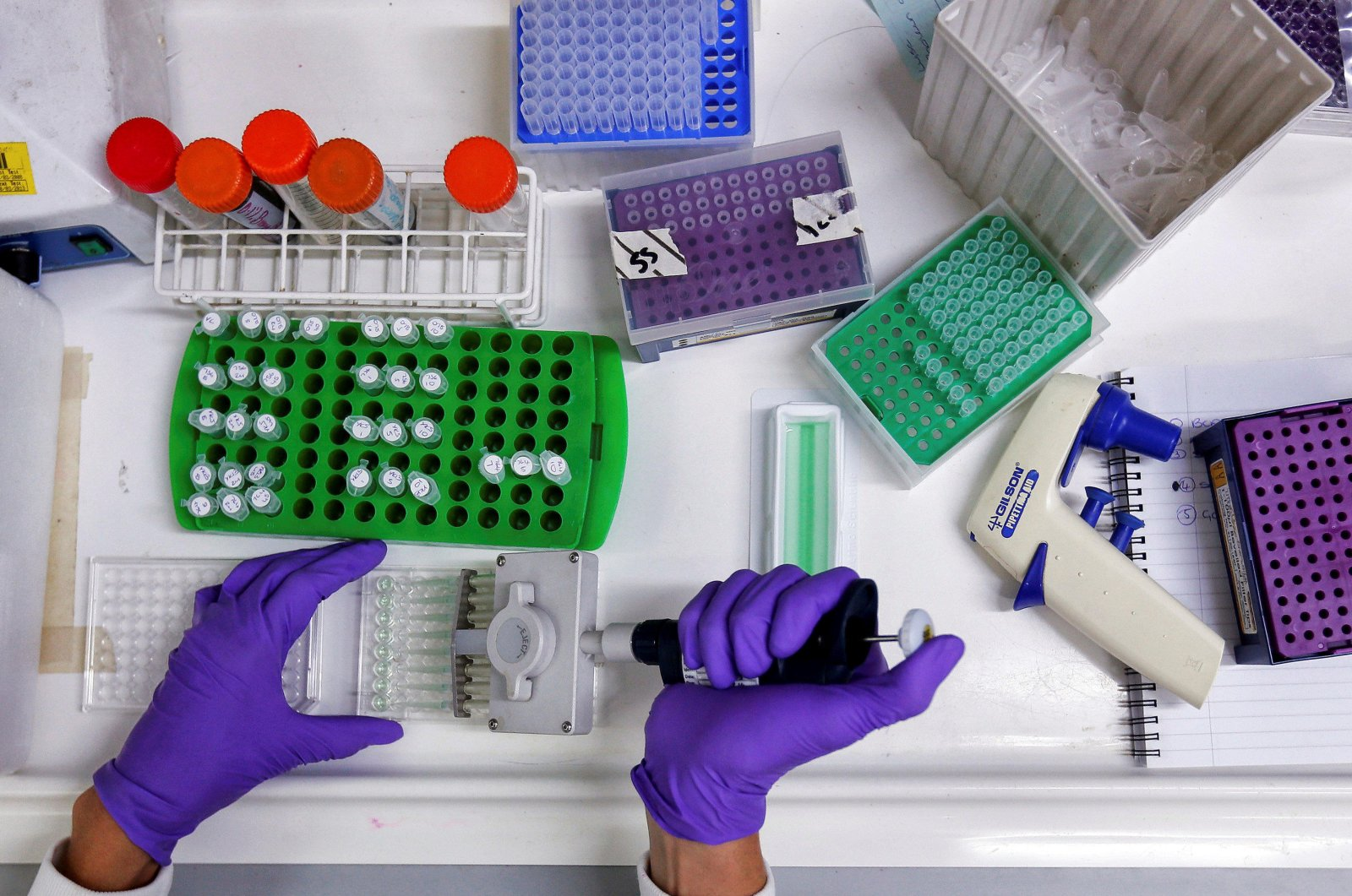 A scientist prepares protein samples for analysis in a lab at the Institute of Cancer in Sutton, England on July 15, 2013. (Reuters Photo)