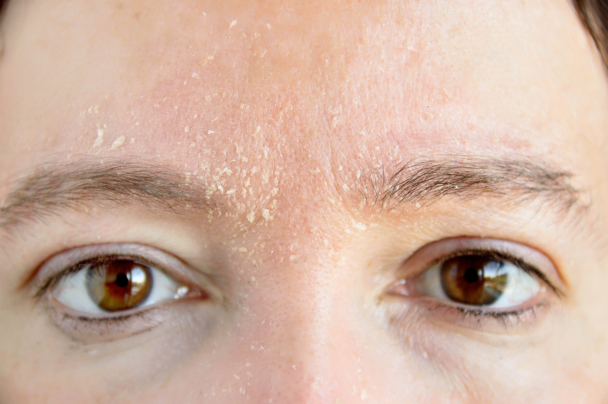 Stress can set off a range of skin conditions, including atopic dermatitis. (iStock Photo)