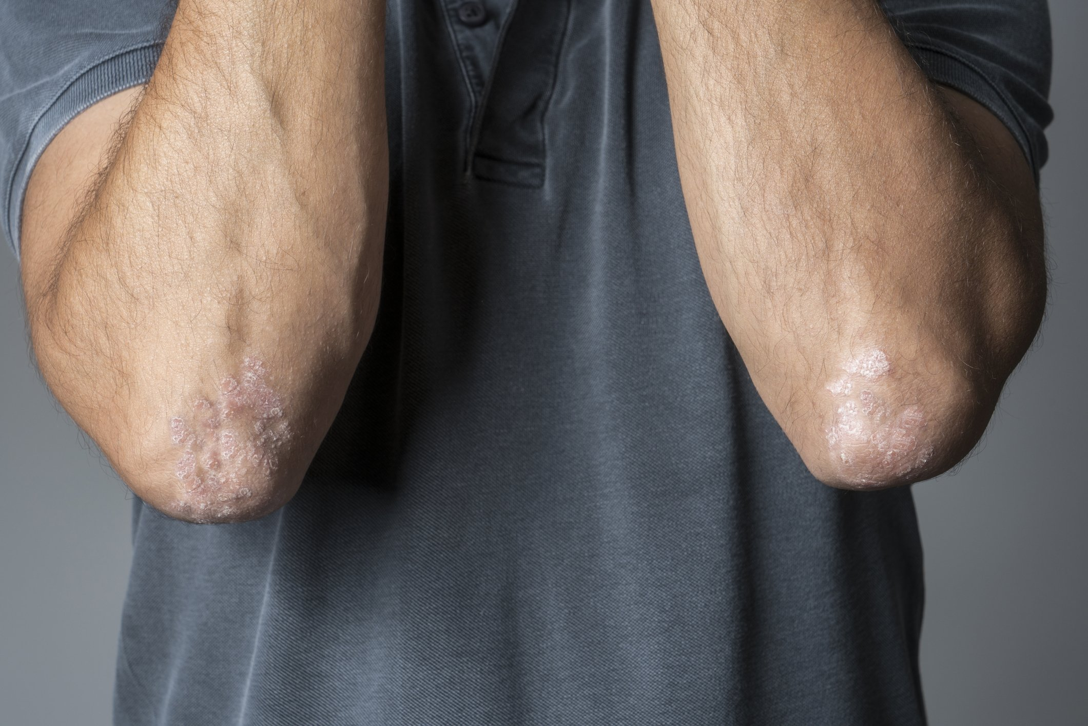 Psoriasis plaques are often exacerbated by stress and can cause new flare-ups. (iStock Photo)