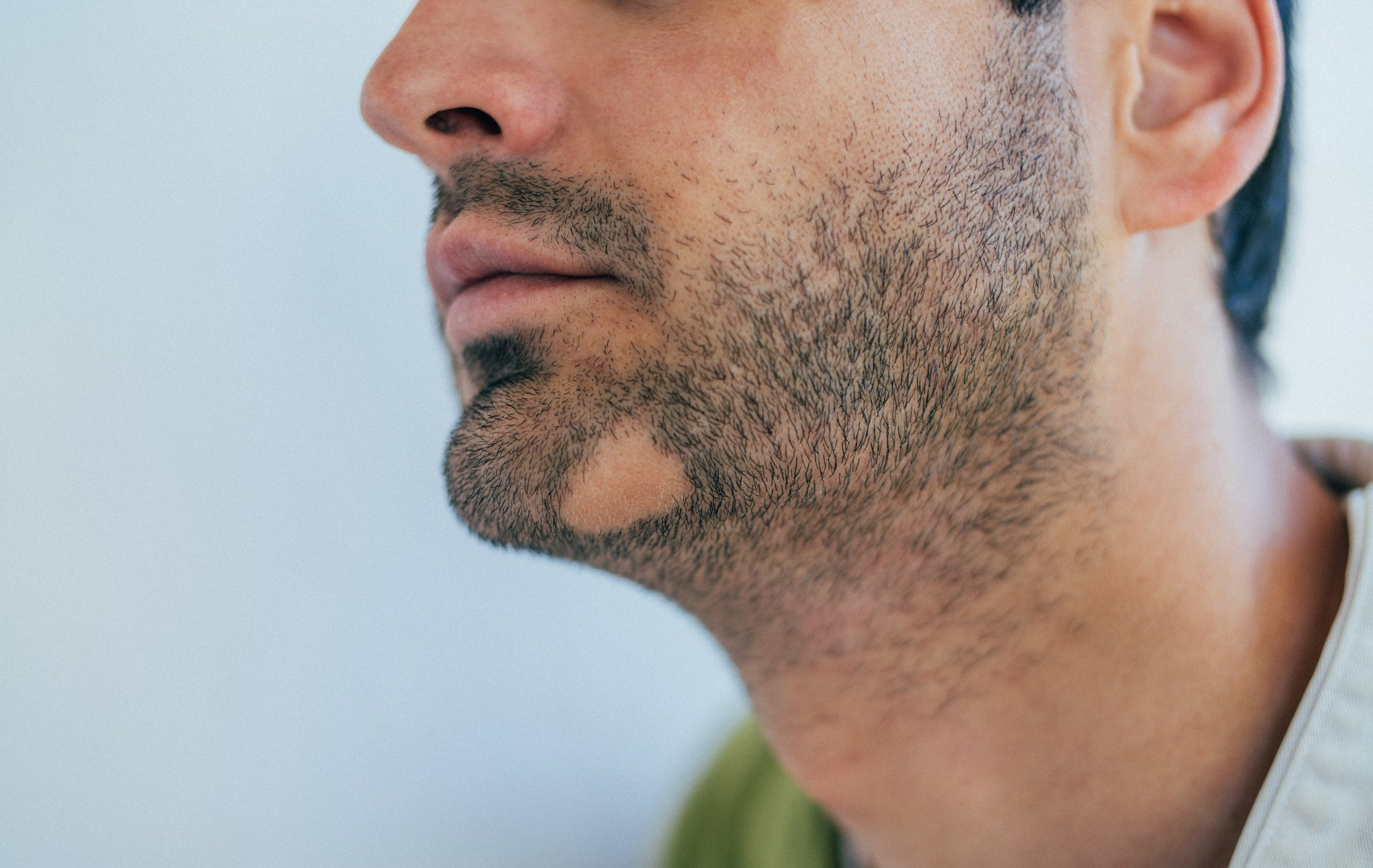 High levels of stress can cause alopecia areata in some people. (iStock Photo)