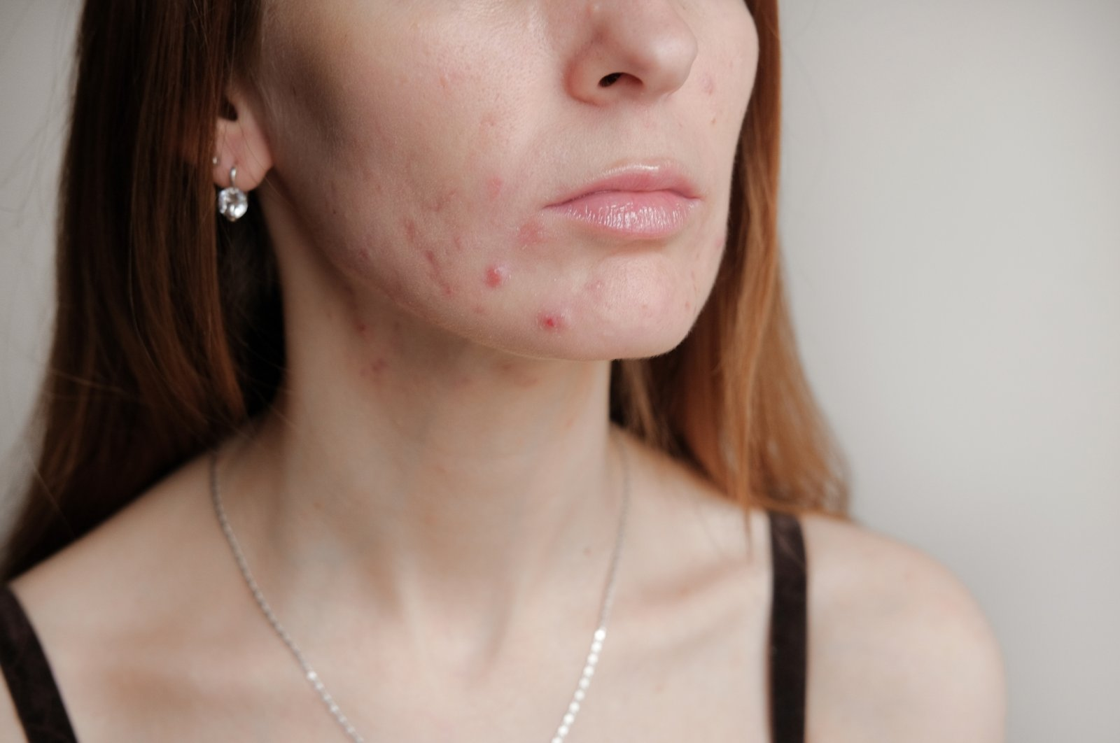 Stress can cause spikes in oil production, leading to acne lesions forming on the skin. (iStock Photo)