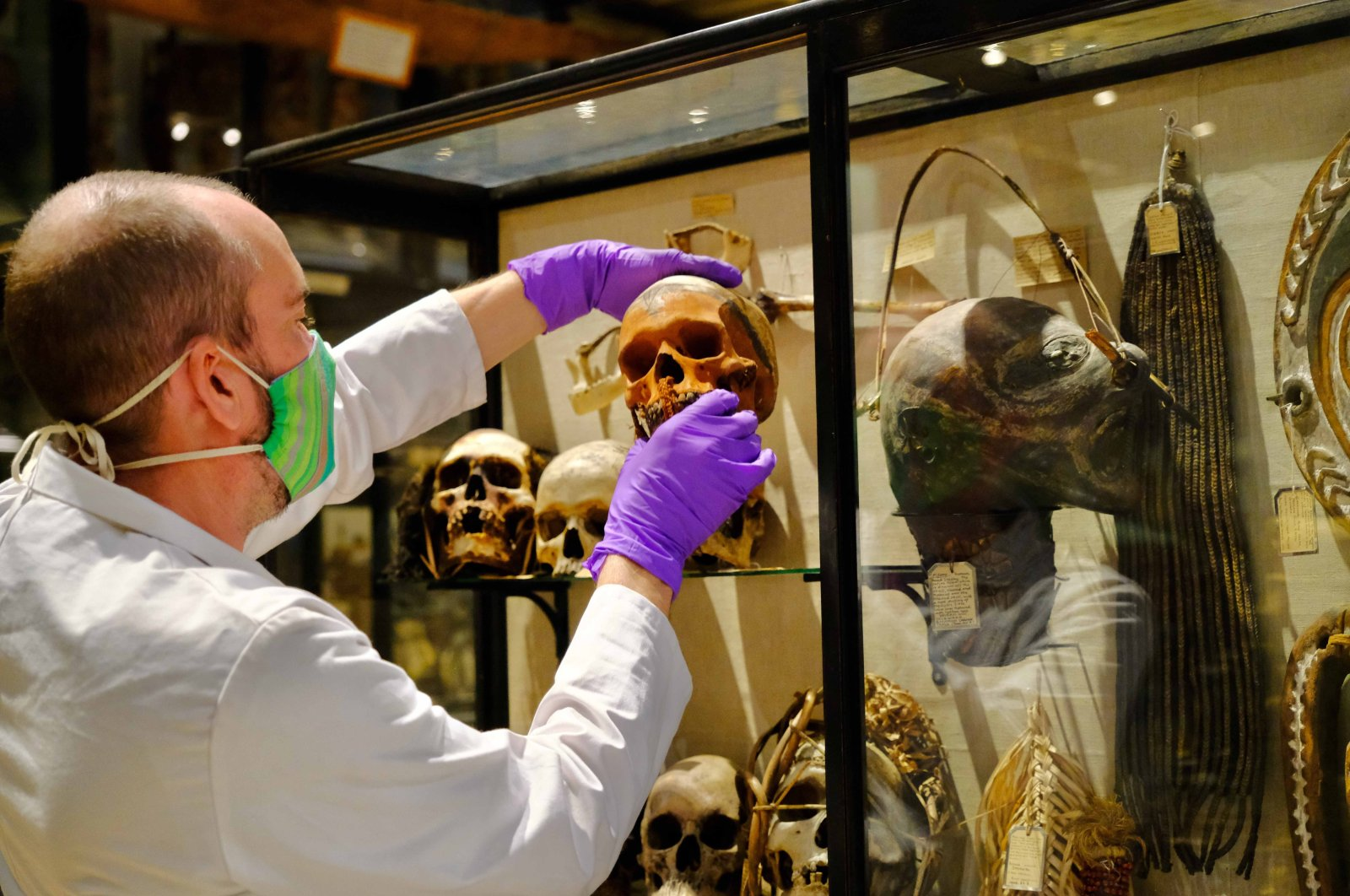 In this image taken in July 2020 and made available by Pitt Rivers Museum, a skull is removed from the Treatment of Dead Enemies case at the Pitt Rivers Museum, part of the University of Oxford, Oxford, England. (AP PHOTO)