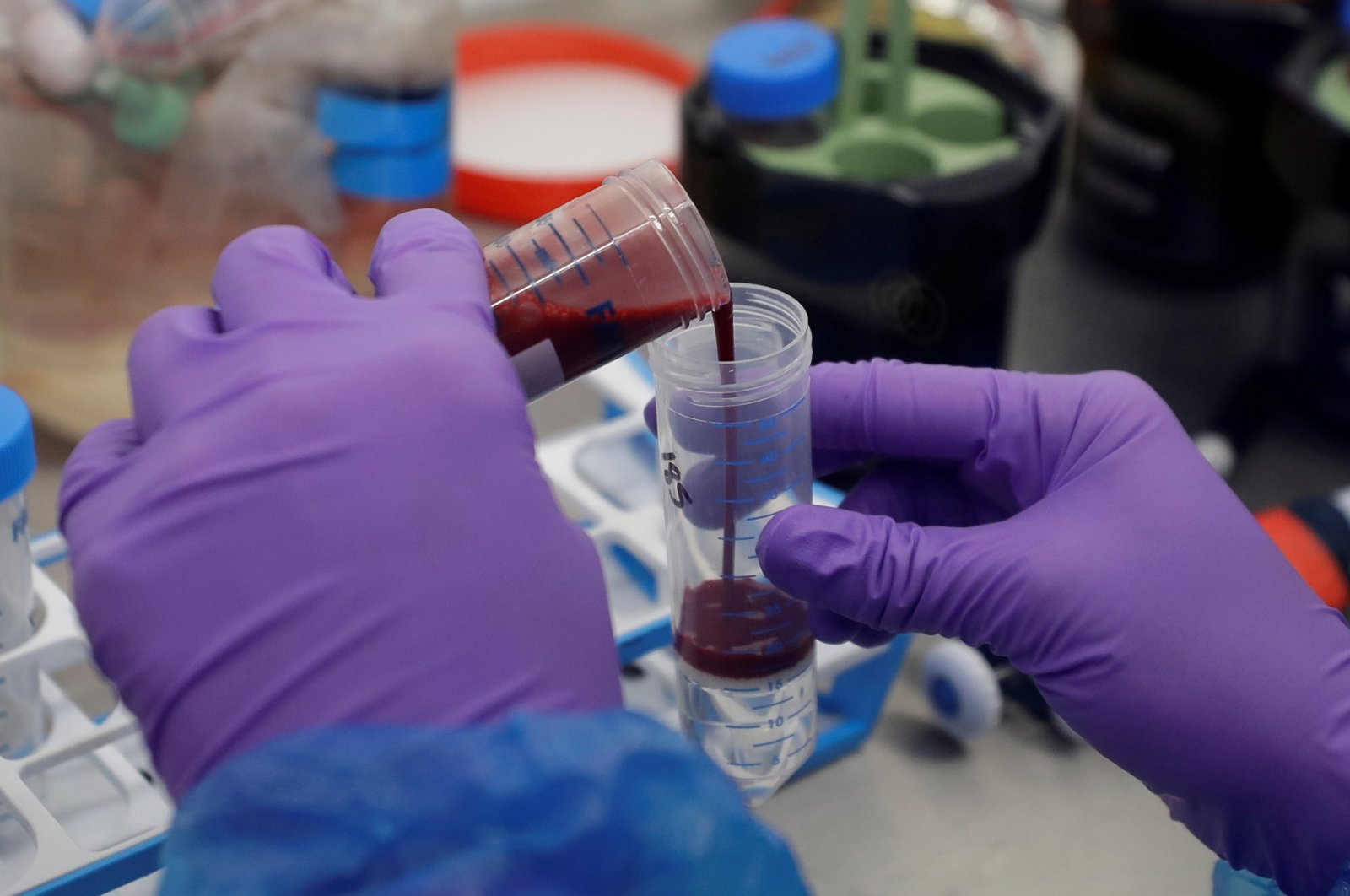Blood samples from patients infected with the coronavirus are prepared for analysis in Cambridge, U.K., Oct. 2, 2020. (REUTERS Photo)