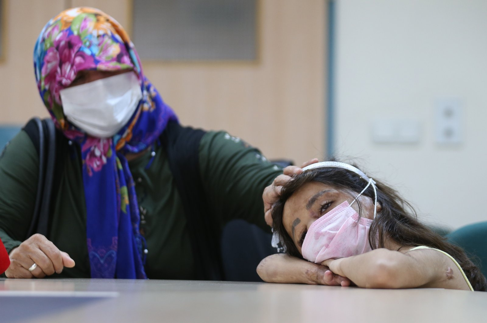 Syrian girl Hane Dimo and her mother in Akdeniz University hospital in southern Antalya province, Oct. 8, 2020. (AA Photo)