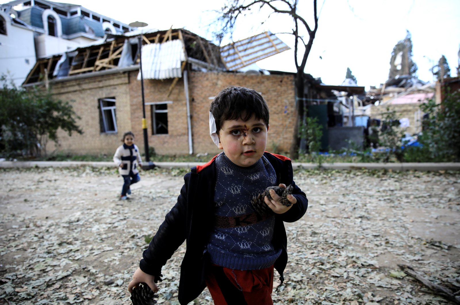 5-year-old Bahtiyar Elnur, who was injured in an Armenian attack, plays with his sister Sehla, in the city of Ganja, Azerbaijan Oct.11, 2020. (Reuters Photo)
