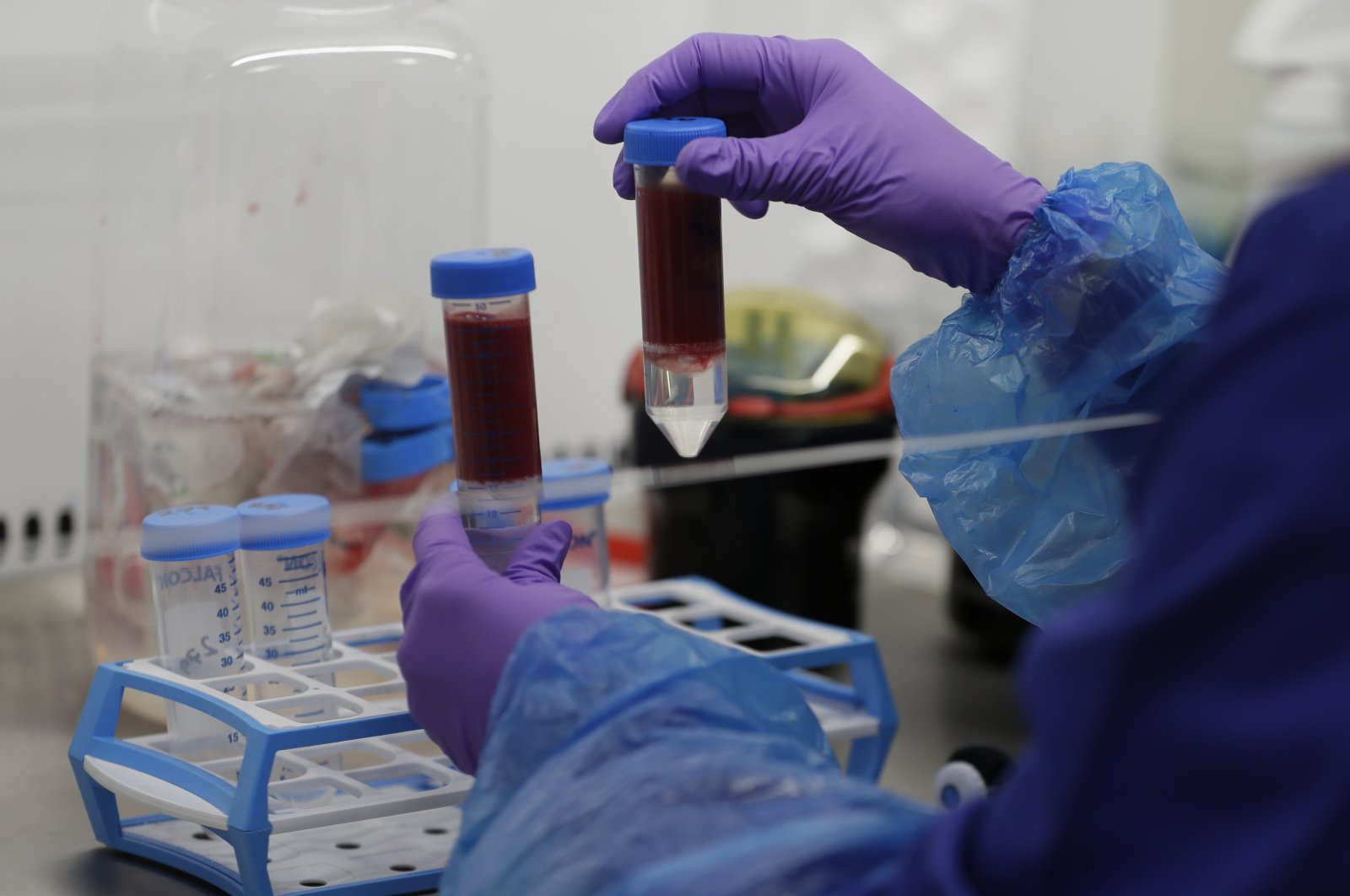 Blood samples from coronavirus patients are prepared for analysis as part of the TACTIC-R trial in the Blood Processing Lab in the Cambridge Institute of Therapeutic Immunology and Infectious Disease, in Cambridge, England, May 21, 2020. (AP Photo)
