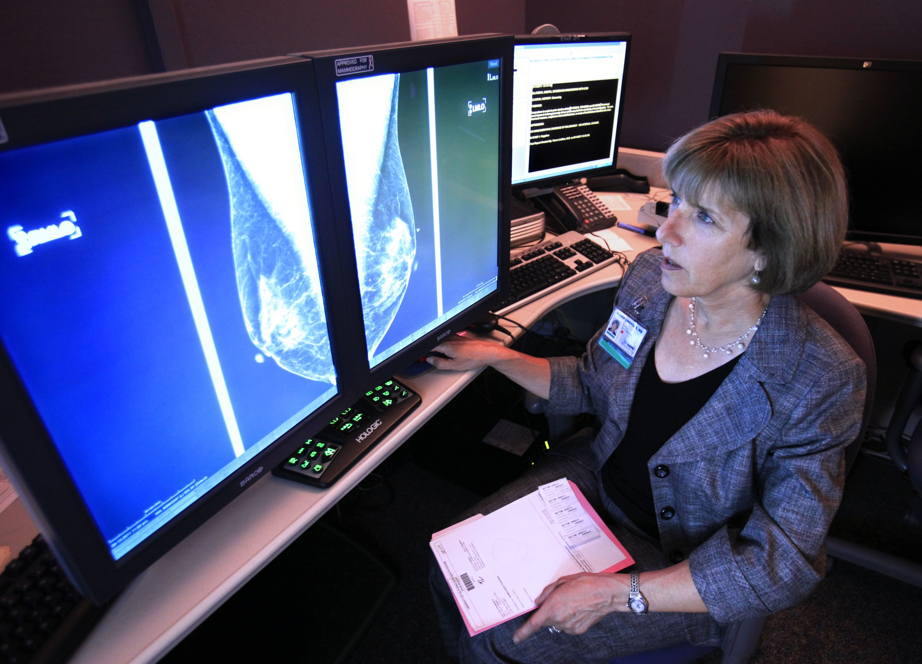 ln this photo taken Sept. 14, 2011, Dr. Karen Lindsfor, a professor of radiology and chief of breast imaging at the University of California, Davis Medical Center, examines the mammogram of a patient with heterogeneously dense breast tissue,  in Sacramento, Calif. (AP Photo)