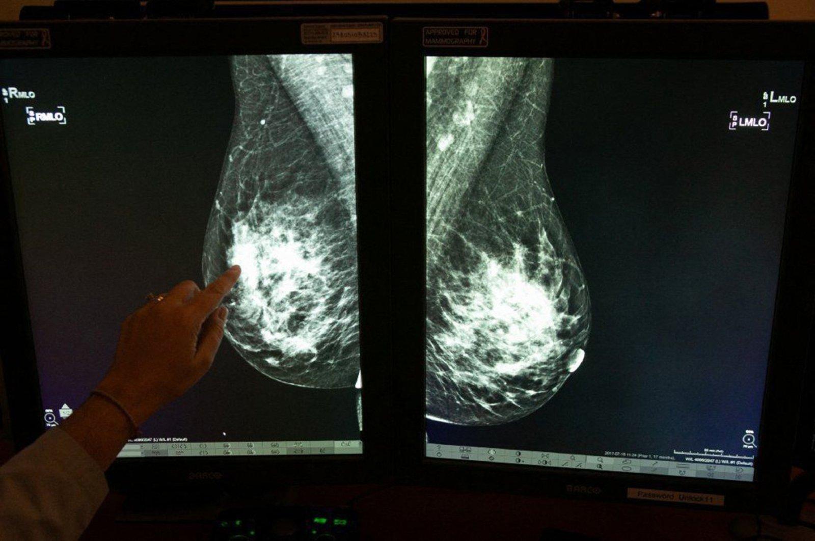 Dr. Georgia Giakoumis Spear points to dense breast tissue on a mammogram at Skokie Hospital on December 5, 2018. (via REUTERS)