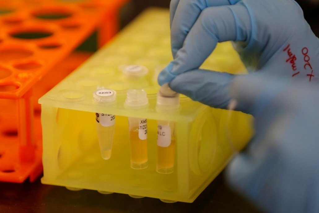 A lab technician works to develop a COVID-19 antibody, San Diego, California, U.S., May 22, 2020. (Reuters Photo)