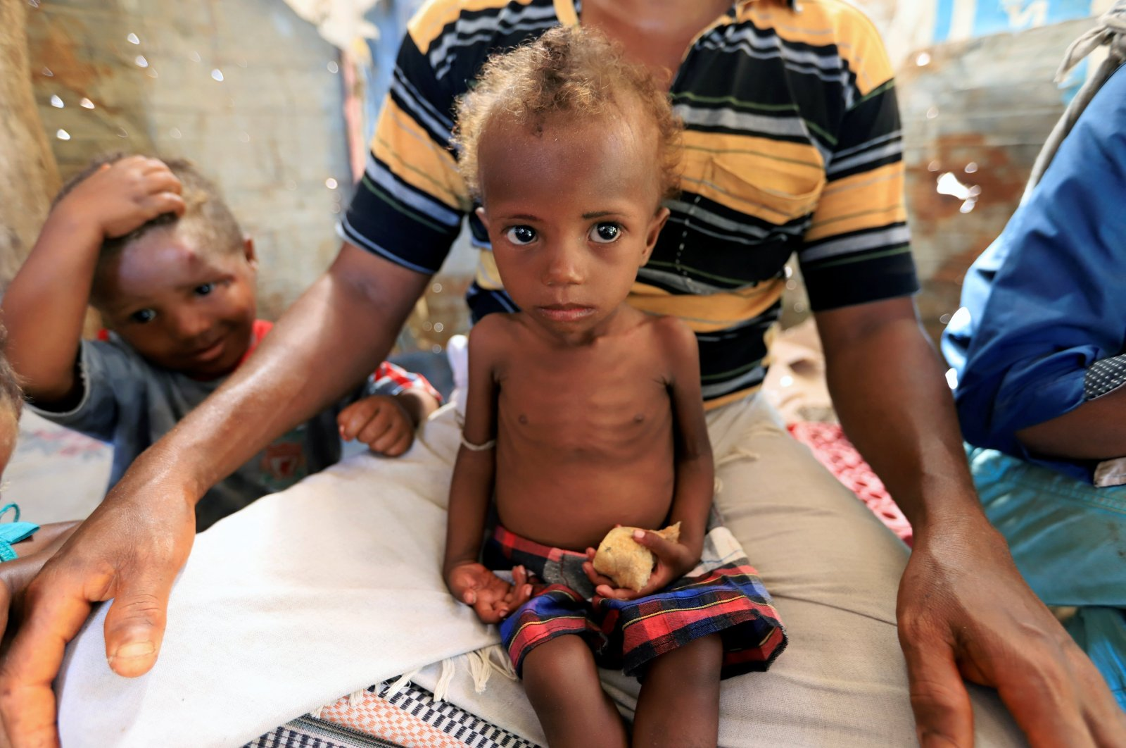 Hanaa Ahmad Ali Bahr, a malnourished girl sits on her father's lap in a shanty town in Hodeidah, Yemen, March 25, 2019. (Reuters Photo)