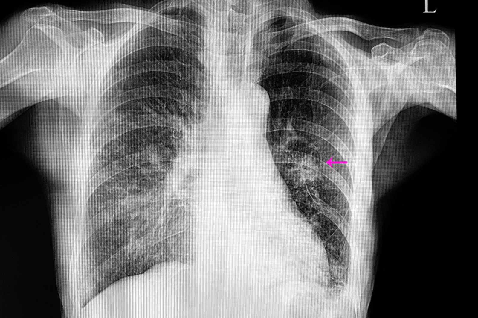 A chest X-ray shows a patient with pneumonia and a lung nodule. (Shutterstock Photo)
