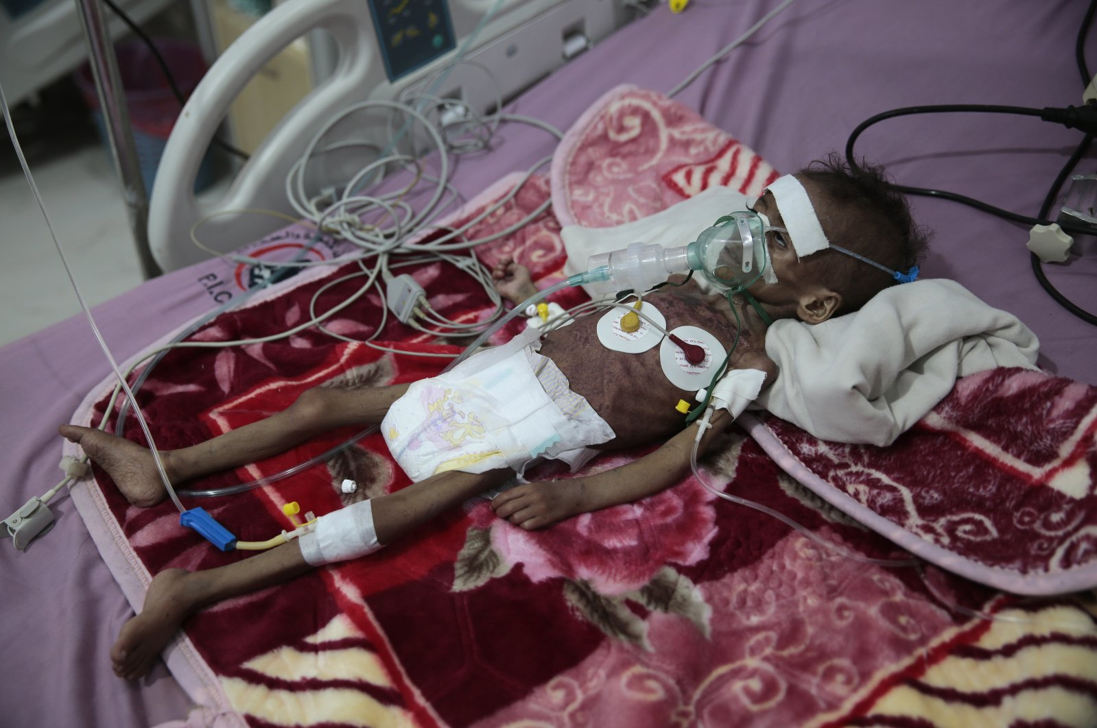 A malnourished girl, Rahmah Watheeq, receives treatment at a feeding center at Al-Sabeen hospital in Sanaa, Yemen, Nov. 3, 2020.  Two-thirds of Yemen's population of about 28 million people are hungry, and nearly 1.5 million families currently rely entirely on food aid to survive. Another million people are set to fall into crisis levels of hunger before the end of the year, according to aid agencies working in Yemen. (AP Photo/Hani Mohammed)