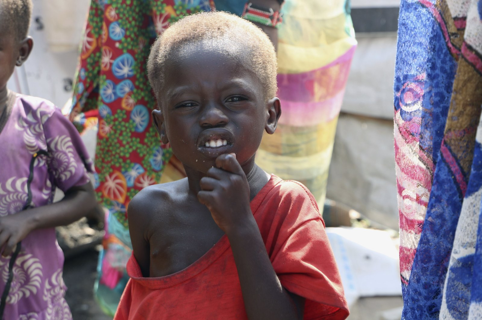 Three-year-old Peter Sebit stands outside a health clinic waiting to receive food supplements in Pibor, South Sudan, Dec. 17, 2020. (AP Photo)