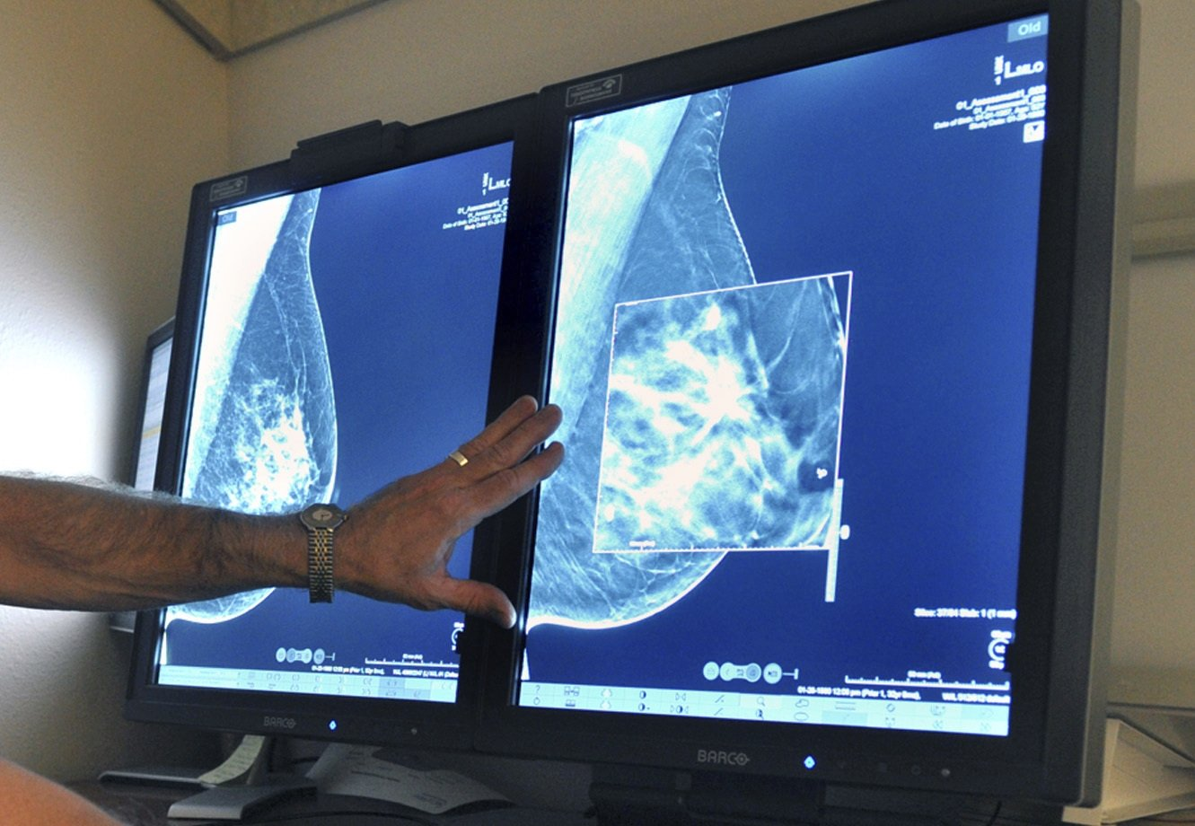 A radiologist compares an image from earlier, 2-D technology mammogram to the new 3-D Digital Breast Tomosynthesis mammography in Wichita Falls, Texas, July 31, 2012. (Times Record News via AP)