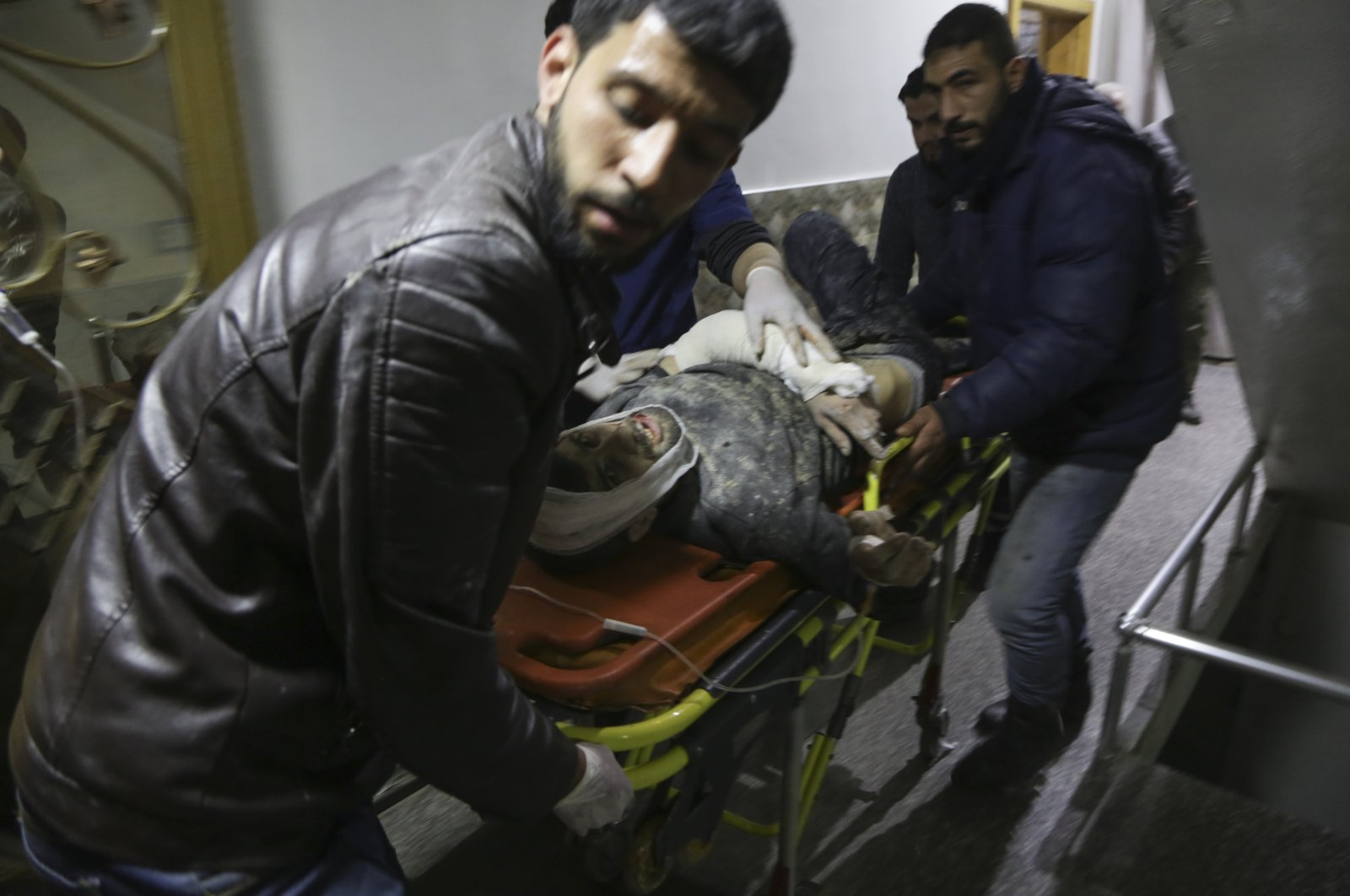 A civilian injured in a rocket attack by YPG terrorists is taken to a makeshift hospital in Al-Bab, Syria, Feb. 8, 2021 (AA File Photo)