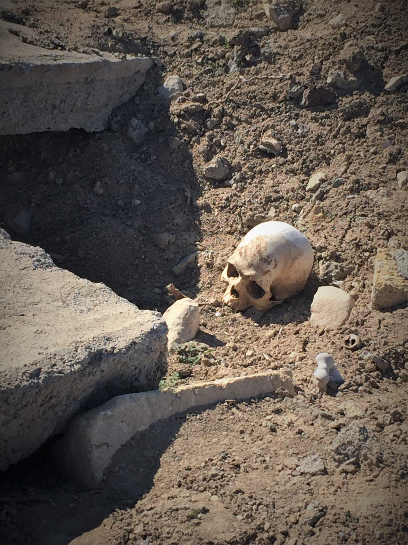 Bones strewn across a damaged cemetery at Gabriel Cemetery in Nagorno Karabakh, Azerbaijan, February 23, 2021 (AA)