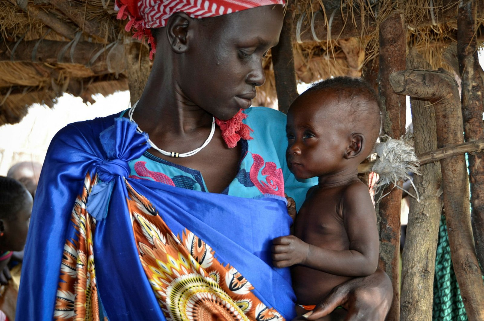 A woman holds her 10-month-old daughter at a feeding center for children in South Sudan, Dec. 10, 2017. (AP Photo)
