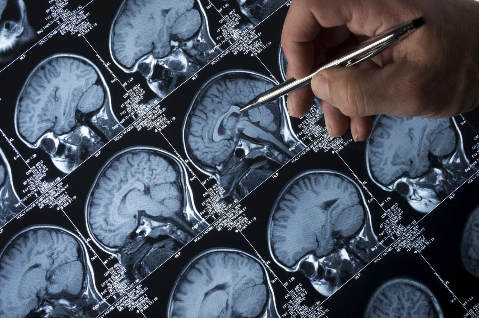 A doctor analyzes the magnetic resonance image (MRI) brain scan of the head and skull of a person. (Getty Images)