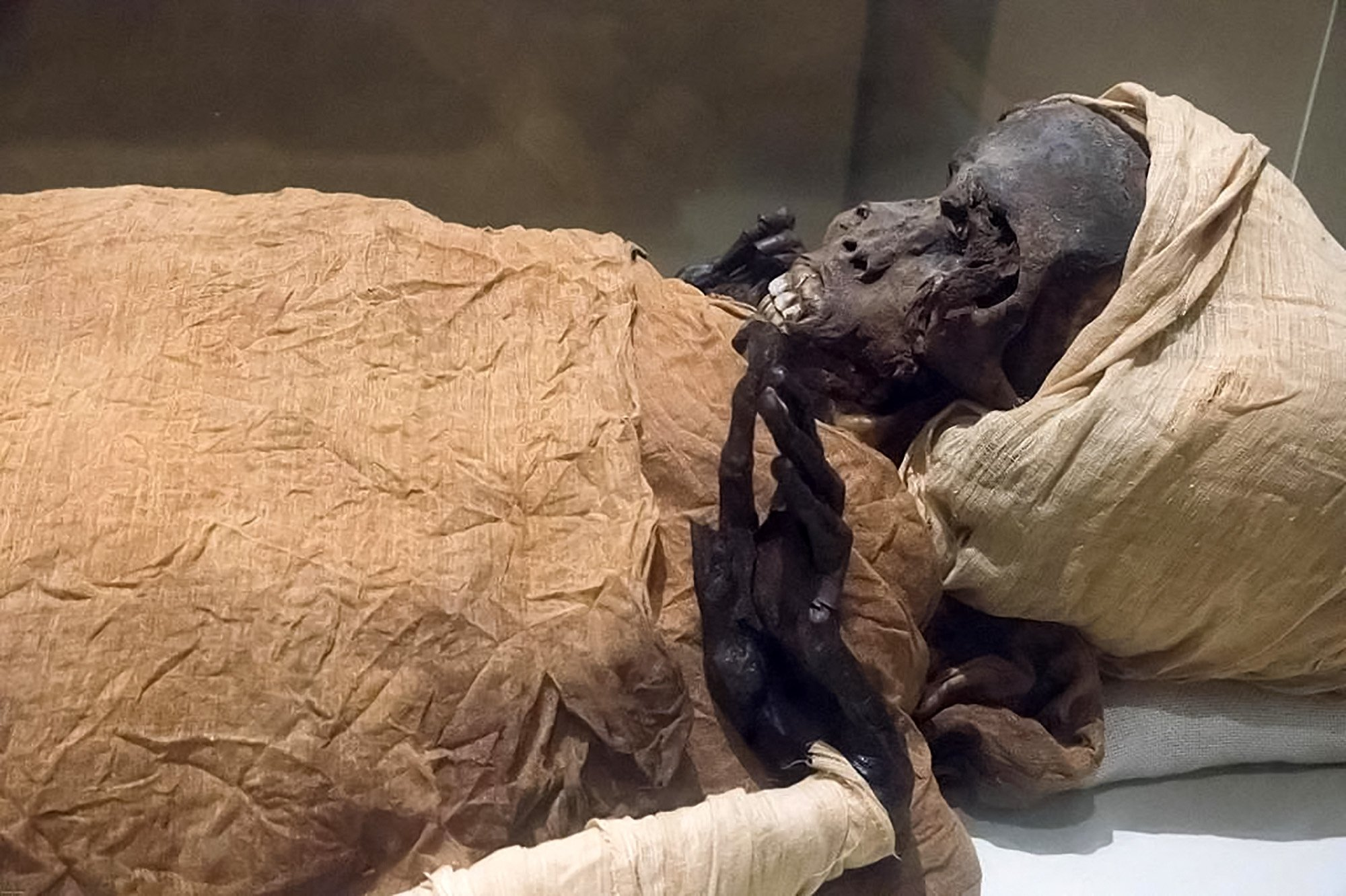 The mummy of ancient Egyptian King Seqenenre Tao II, 'the Brave,' who reigned over southern Egypt some 1,600 years B.C., in a photo handout released by the Egyptian Ministry of Tourism and Antiquities on Feb. 17, 2021. (Photo by - / Egyptian Ministry of Antiquities / AFP)