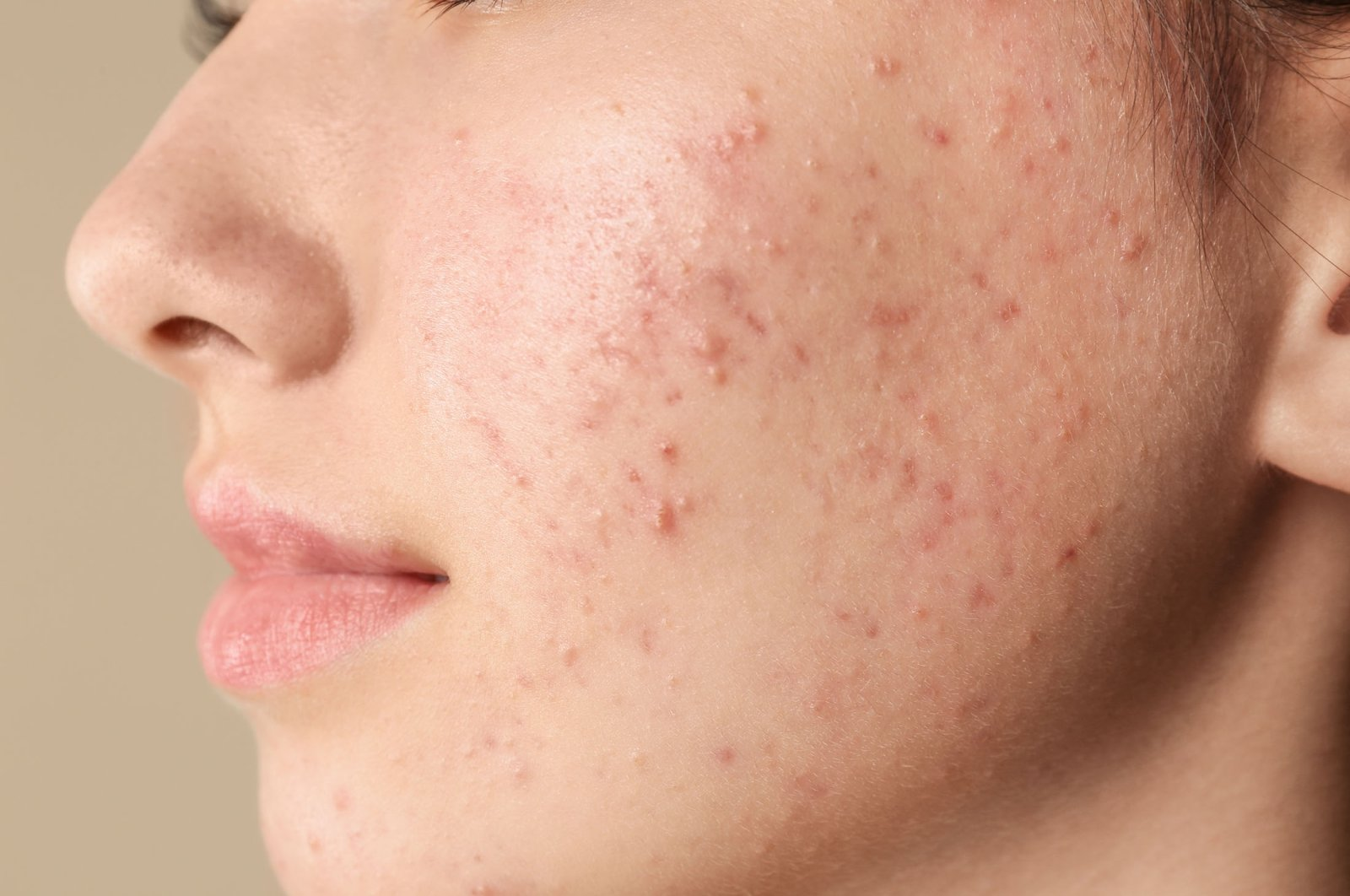 One expert believes persistent adult acne could be indirectly caused by climate change. (Shutterstock Photo)